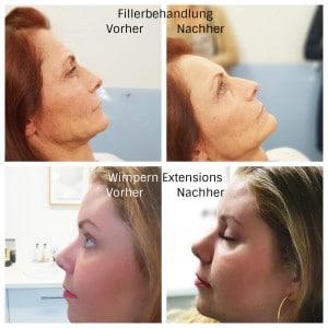 Vorher Nachher Vergleich bei Event mit Live Behandung in der Praxis von Frau Dr. Pirkko Schuppan